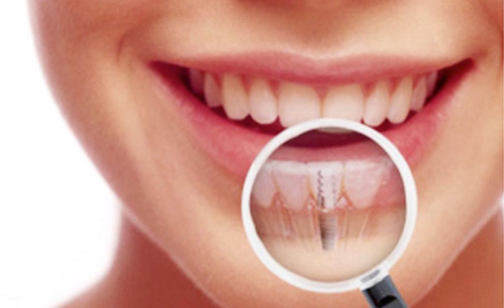 Periimplantitis Clinica Dental El Quirinal