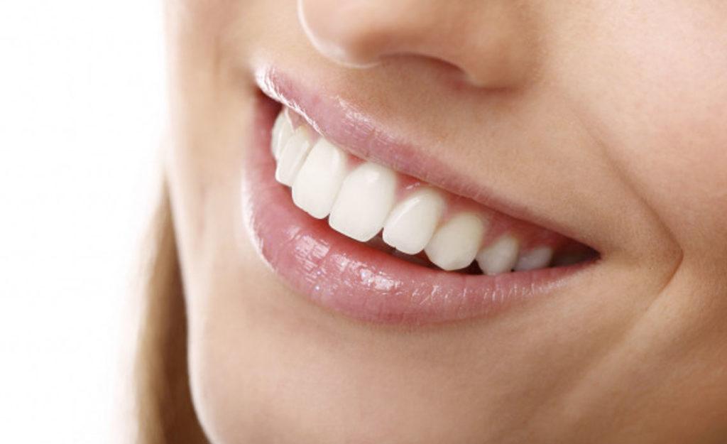 10 preguntas sobre Blanqueamiento dental